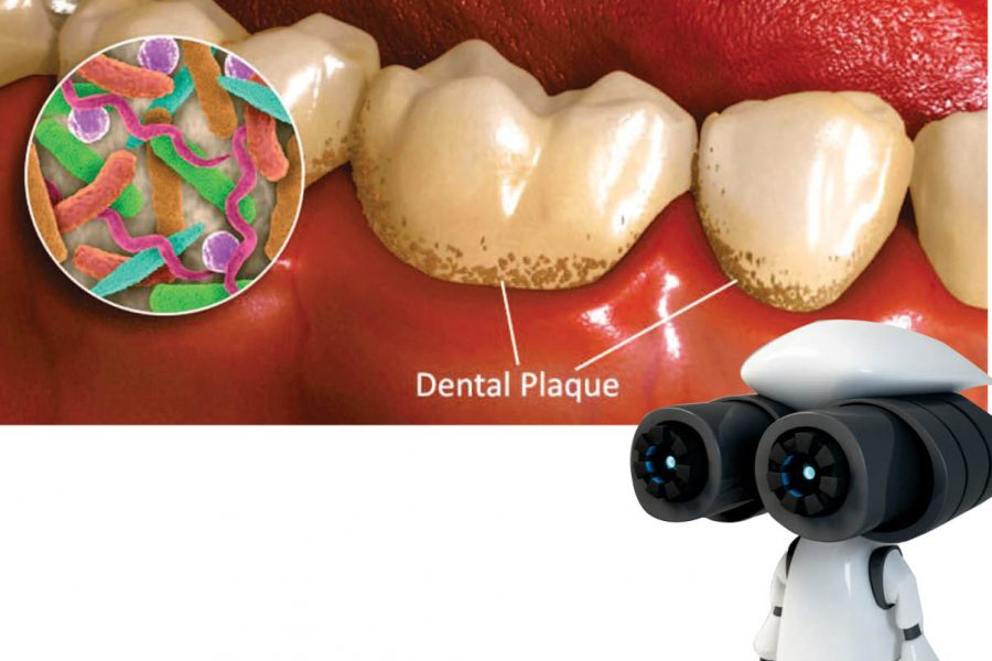 NOW A DENTAL PLAQUE  WILL BE WIPING OUT BY  AN ARMY OF MICRO-ROBOTS