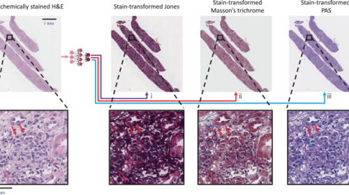 AI technique to transform stained tissue into special stains : New research